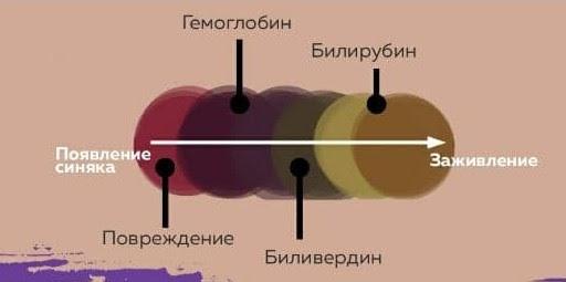 Стадии синяков